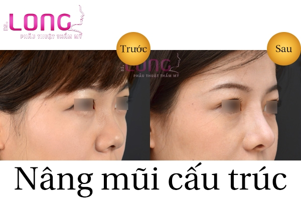 nang-mui-cau-truc-sun-suon-la-gi-1