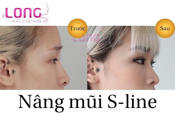 nang-mui-sline-co-phai-la-cach-nang-song-mui-tu-nhien-khong-1