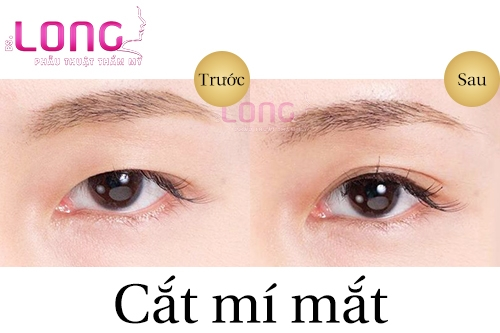 tim-hieu-ve-phuong-phap-cat-mat-2-mi-han-quoc-2