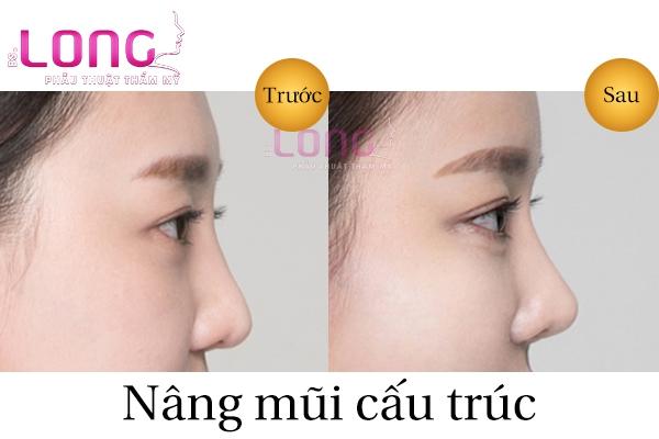 co-nen-nang-mui-cau-truc-khong-1