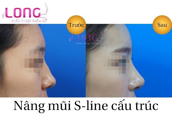 gia-nang-mui-s-line-cau-truc-1