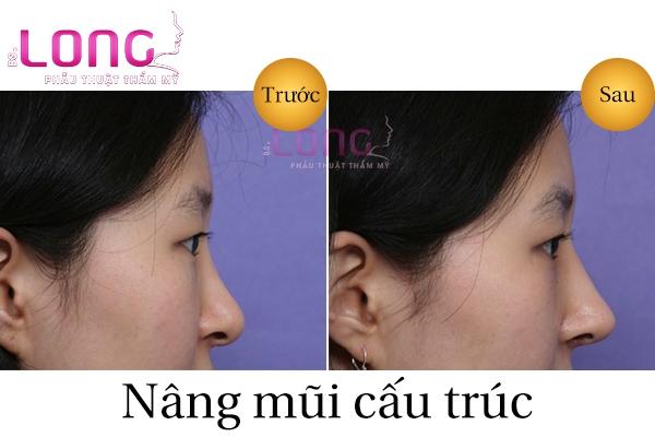 nang-mui-cau-truc-bi-veo-hong-phai-lam-sao-1