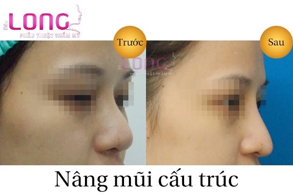 nang-mui-cau-truc-chinh-hinh-xuong-mui-co-duoc-khong-1