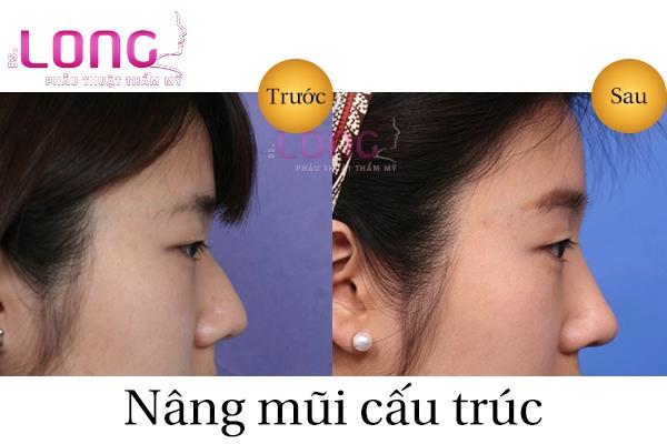 nang-mui-cau-truc-co-tot-khong-1