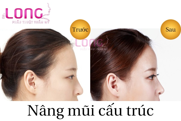nang-mui-cau-truc-megaderm-la-gi-1