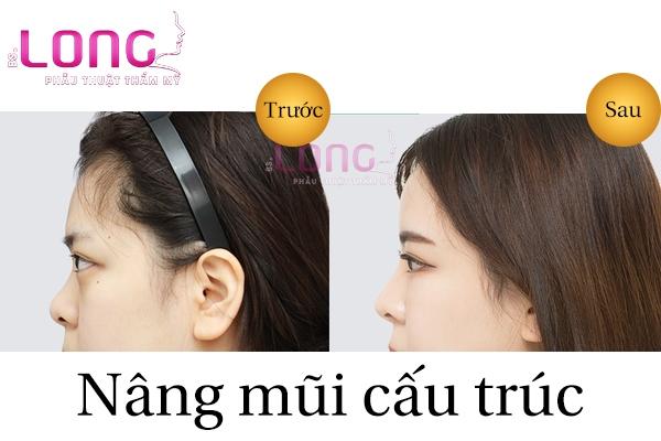 review-qua-trinh-phau-thuat-nang-mui-cau-truc-1
