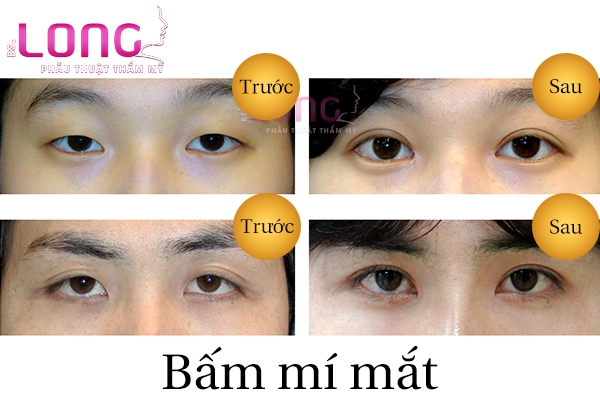 18-tuoi-co-bam-mat-2-mi-duoc-khong-2