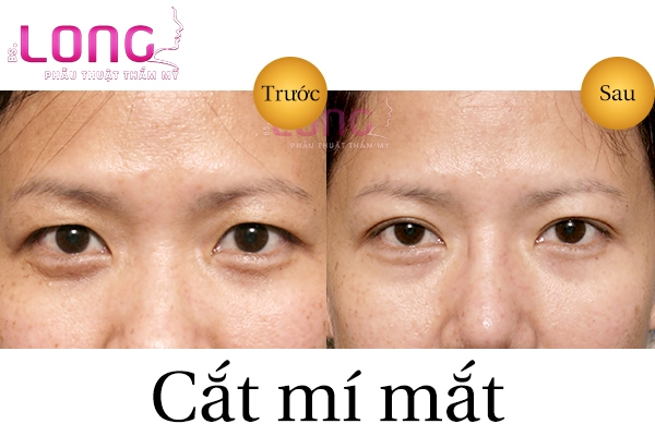 co-nen-cat-mat-2-mi-han-quoc-tai-tmv-bac-si-long-khong-2