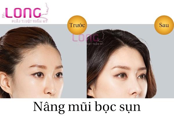 nang-mui-chi-phi-co-dat-khong-1