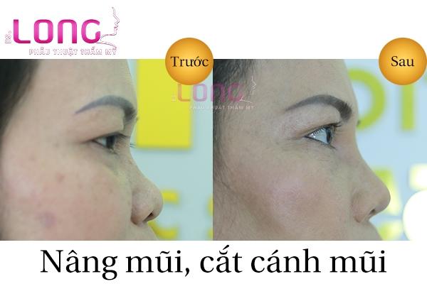 nang-mui-va-cat-canh-mui-cung-luc-co-duoc-khong-1