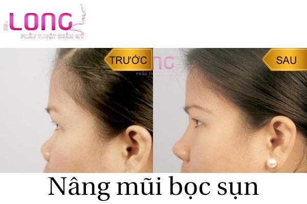 cach-cham-soc-sau-nang-mui-boc-sun-1