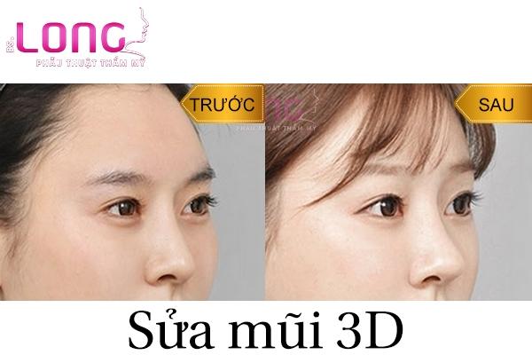 sua-mui-3d-la-gi-thong-tin-chinh-xac-nhat-cho-ban-1