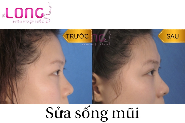 sua-mui-5-lan-co-thuc-hien-duoc-khong-1