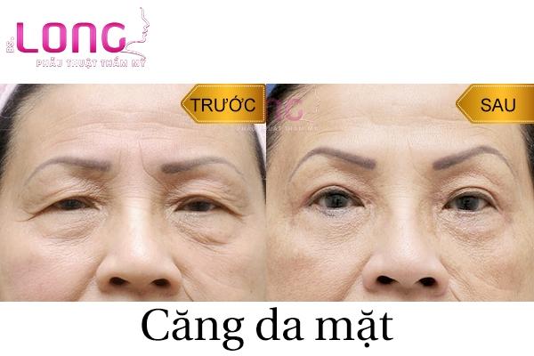 tac-dung-dieu-ky-khi-cang-da-mat-bang-chi-collagen-1