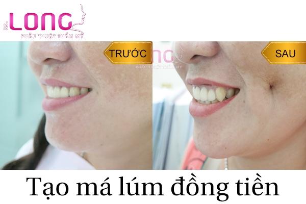 cach-cham-soc-dung-yeu-cau-khi-tao-ma-lum-dong-tien-1