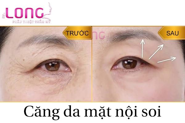 cang-da-mat-noi-soi-doc-quyen-bac-si-long-1