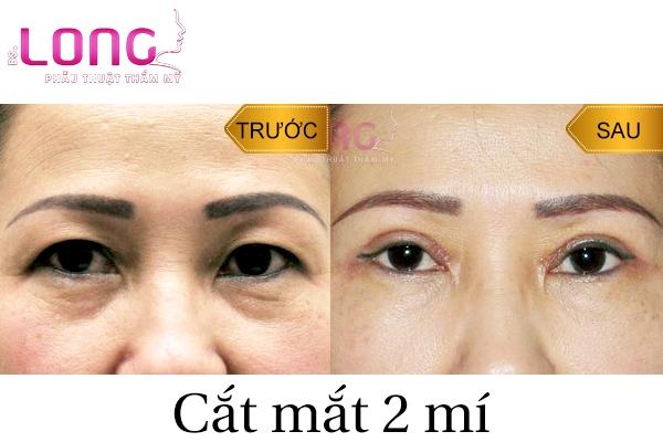 cat-mat-2-mi-bao-lau-thi-lanh-va-het-sung-1