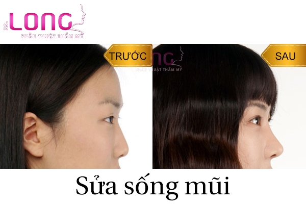 sau-khi-sua-mui-an-ga-duoc-khong-1