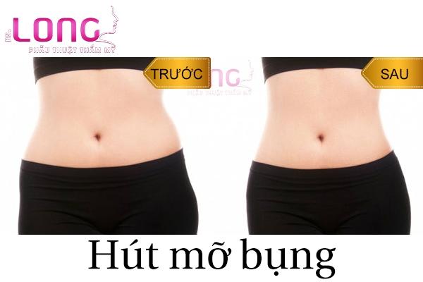 thoi-diem-phu-hop-de-hut-mo-bung-noi-soi-sau-sinh-1