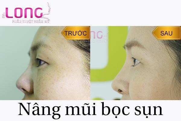 cach-cham-soc-sau-nang-mui-dung-chuan-1