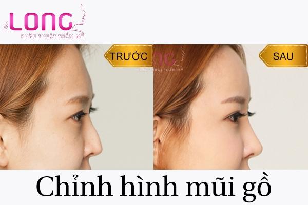 chinh-hinh-mui-go-la-gi-va-co-an-toan-khong-1