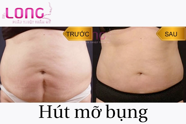 doi-tuong-nao-nen-hut-mo-bung-noi-soi-1