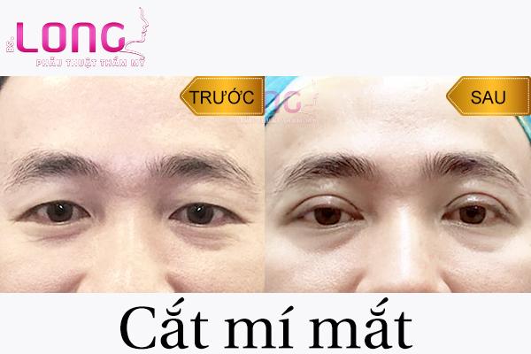 cat-mi-mat-nam-thuc-hien-nhu-the-nao-1