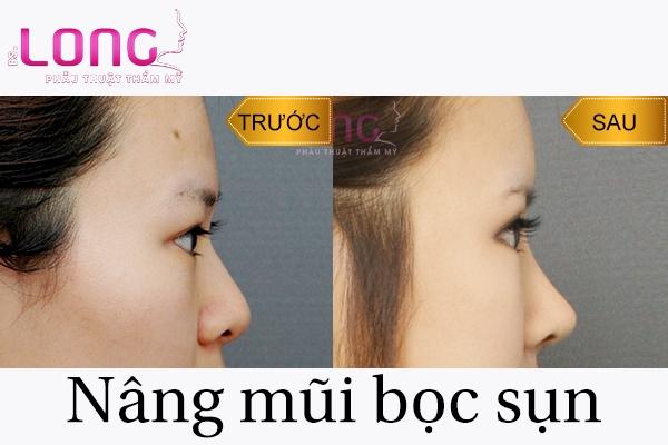 nang-mui-boc-sun-co-bi-lech-khong-1