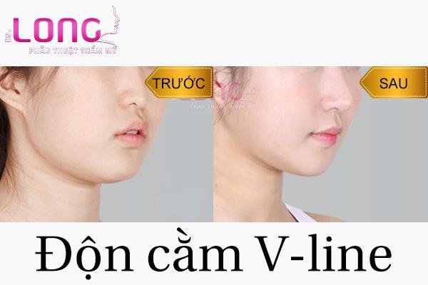 vi-sao-nhieu-nguoi-don-cam-xong-lai-bi-mom-1