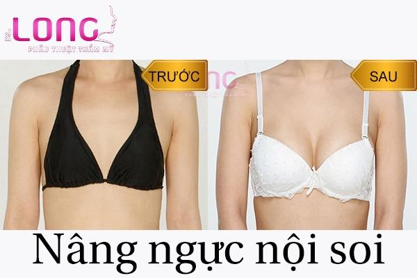 chat-lieu-nang-nguc-noi-soi-co-dam-bao-an-toan-khong-1