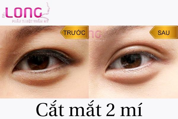 mot-so-thuc-pham-can-kieng-sau-cat-mat-2-mi.-1