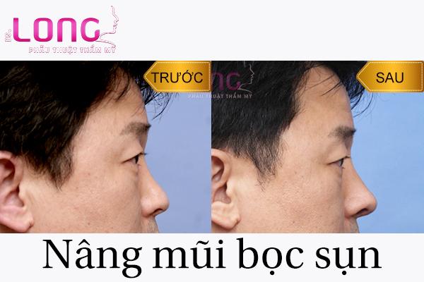 nang-mui-boc-sun-tu-than-cho-nam-co-gi-dac-biet-1