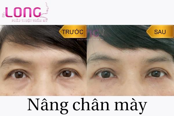 phau-thuat-nang-chan-may-co-nguy-hiem-khong-1