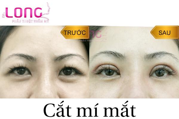 cat-mat-2-mi-cho-nguoi-bam-sinh-mat-to-mat-nho-duoc-khong-1