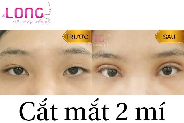 dau-hieu-cat-mat-2-mi-bi-hong-can-sua-lai-1