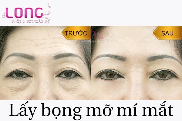 doi-tuong-phu-hop-lay-bong-mo-mi-mat-1