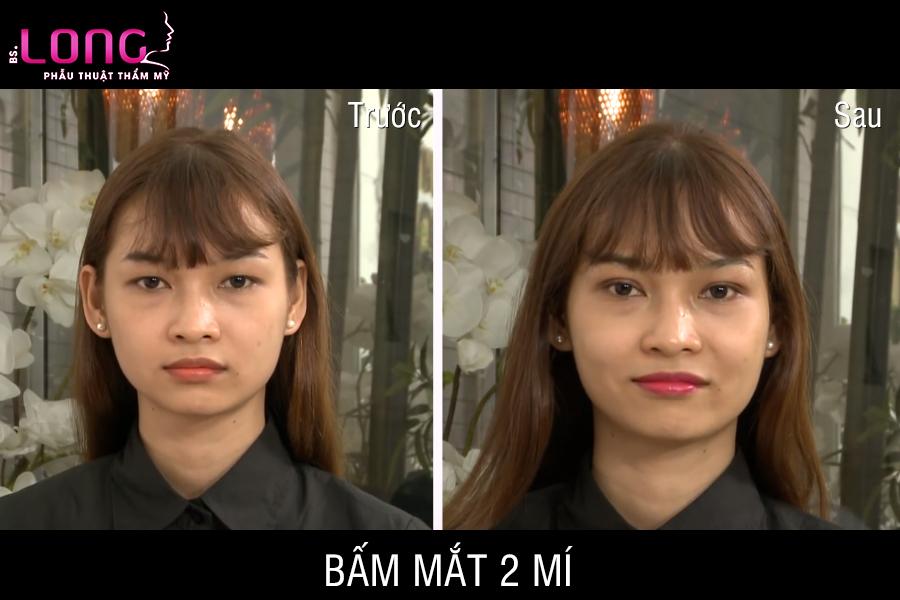 bam-mat-2-mi