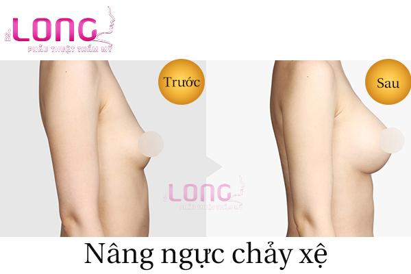 cach-nang-nguc-chay-xe-sau-sinh-1