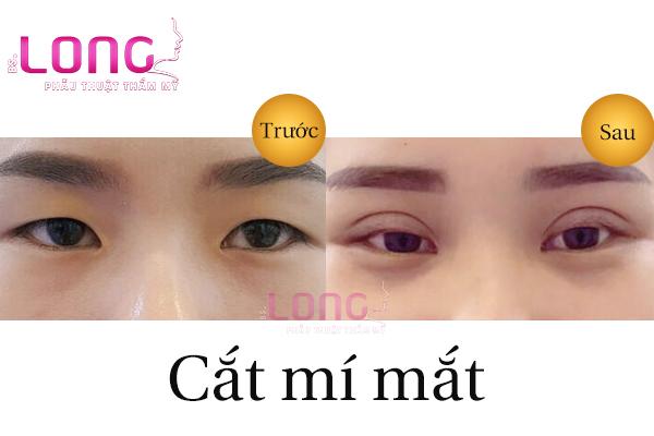 cat-mat-bao-lau-moi-lanh-va-dep-1