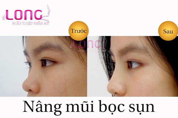nang-mui-boc-sun-nhan-tao-bs-long-co-an-toan-khong-1