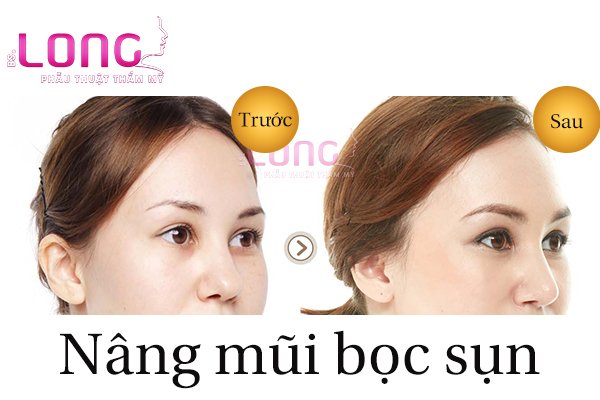 nang-mui-boc-sun-nhan-tao-co-dau-khong-1