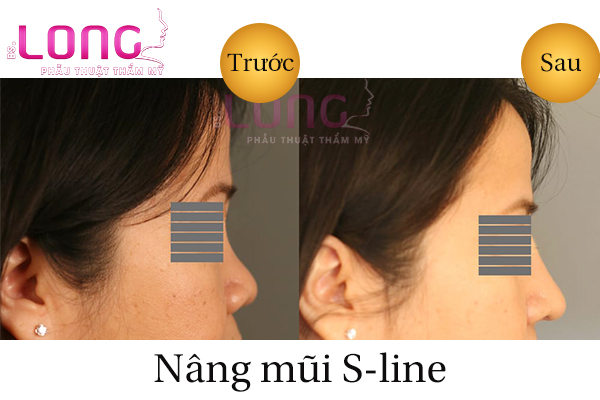nang-song-mui-sline-cau-truc-la-gi-1