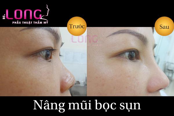 nang-mui-boc-sun-co-phai-lay-tu-sun-tai-1