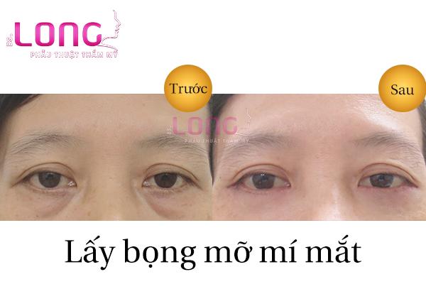 lay-bong-mo-mat-gia-bao-nhieu-1
