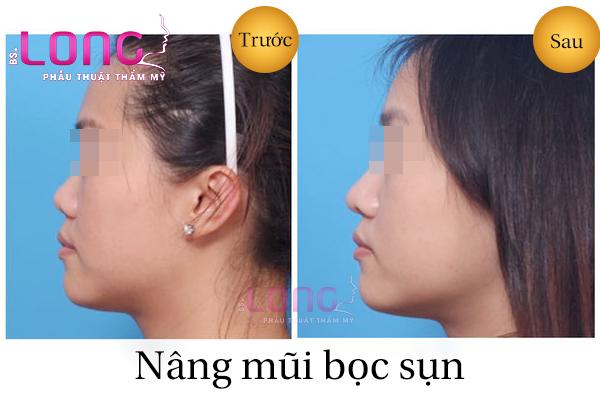 nang-mui-boc-sun-nhan-tao-o-dau-dep-1