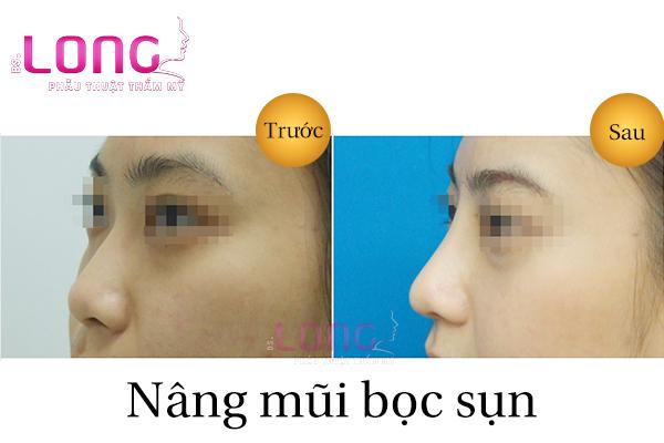 nang-mui-boc-sun-nhan-tao-o-dau-tot