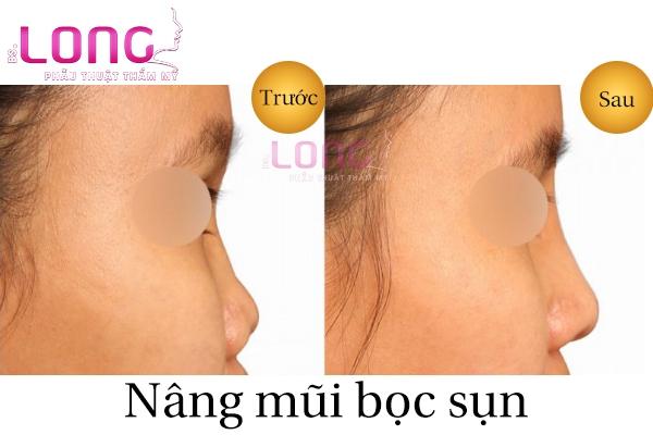 nang-mui-boc-sun-nhan-tao-duoc-bao-lau-1