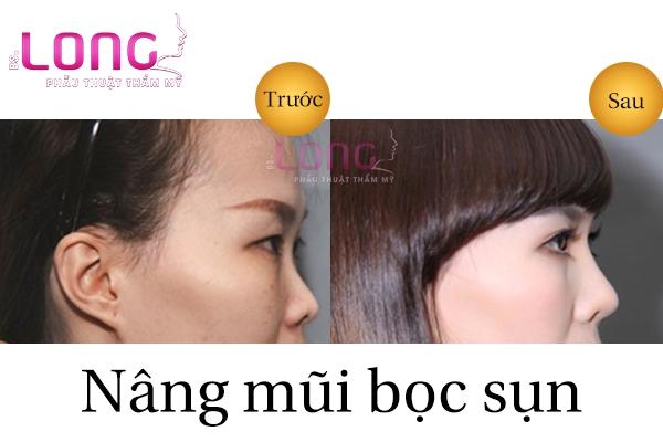 nang-mui-boc-sun-tu-than-bs-long-co-an-toan-khong-1