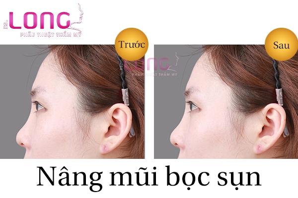 nang-mui-boc-sun-tu-than-co-dau-khong-1