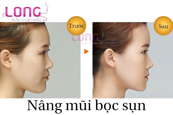 nang-mui-han-quoc-boc-sun-tu-than-khong-dau-1